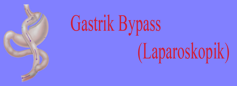 bypas